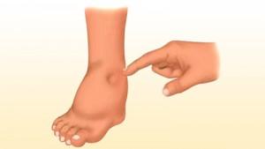 Картинка-анонс к статье Признаки и лечение отеков при циррозе печени